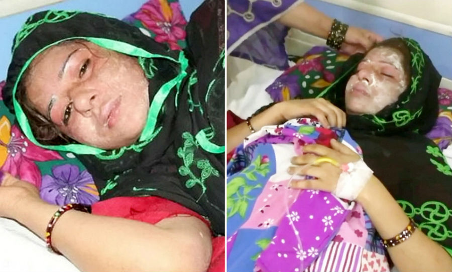 Man Pours Acid on Sleeping Wife After She Gave Birth to a Baby Girl